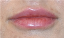 Lip Augmentation / Enhancement After Photo by Richard Reish, MD, FACS; New York, NY - Case 33054