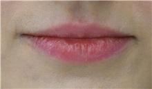 Lip Augmentation / Enhancement Before Photo by Richard Reish, MD, FACS; New York, NY - Case 33054