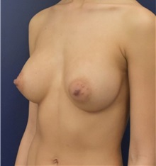 Breast Augmentation After Photo by Richard Reish, MD, FACS; New York, NY - Case 33057