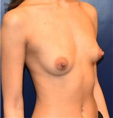 Breast Augmentation Before Photo by Richard Reish, MD, FACS; New York, NY - Case 33057