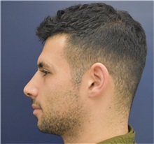 Rhinoplasty After Photo by Richard Reish, MD, FACS; New York, NY - Case 33059