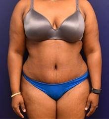 Tummy Tuck After Photo by Richard Reish, MD, FACS; New York, NY - Case 33061