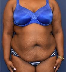 Tummy Tuck Before Photo by Richard Reish, MD, FACS; New York, NY - Case 33061