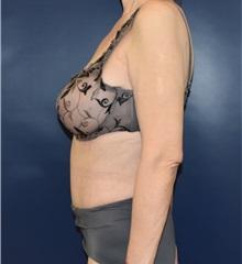 Tummy Tuck After Photo by Richard Reish, MD, FACS; New York, NY - Case 33070