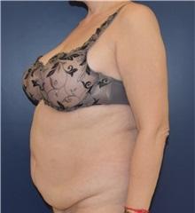 Tummy Tuck Before Photo by Richard Reish, MD, FACS; New York, NY - Case 33070