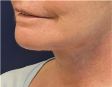 Facelift After Photo by Richard Reish, MD, FACS; New York, NY - Case 33071