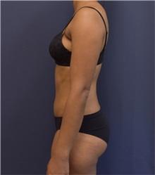 Tummy Tuck After Photo by Richard Reish, MD, FACS; New York, NY - Case 33187