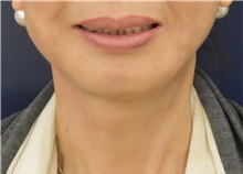 Facelift After Photo by Richard Reish, MD, FACS; New York, NY - Case 33189
