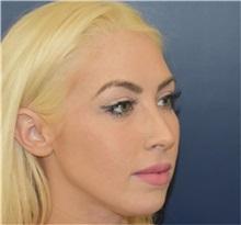 Chin Augmentation Before Photo by Richard Reish, MD, FACS; New York, NY - Case 33191