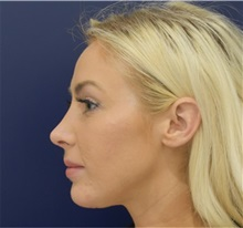Chin Augmentation After Photo by Richard Reish, MD, FACS; New York, NY - Case 33191