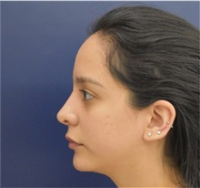 Chin Augmentation After Photo by Richard Reish, MD, FACS; New York, NY - Case 33194