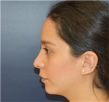 Chin Augmentation Before Photo by Richard Reish, MD, FACS; New York, NY - Case 33194