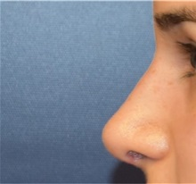 Rhinoplasty After Photo by Richard Reish, MD, FACS; New York, NY - Case 33195