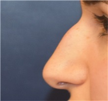 Rhinoplasty Before Photo by Richard Reish, MD, FACS; New York, NY - Case 33195