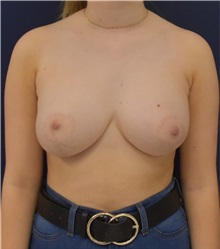 Breast Augmentation After Photo by Richard Reish, MD, FACS; New York, NY - Case 33196