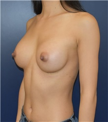 Breast Augmentation After Photo by Richard Reish, MD, FACS; New York, NY - Case 33197