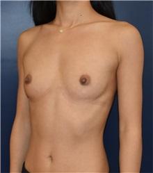 Breast Augmentation Before Photo by Richard Reish, MD, FACS; New York, NY - Case 33197