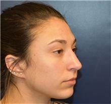 Rhinoplasty Before Photo by Richard Reish, MD, FACS; New York, NY - Case 33198