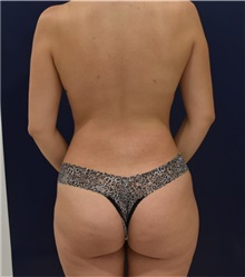 Liposuction After Photo by Richard Reish, MD, FACS; New York, NY - Case 33203