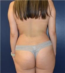 Liposuction Before Photo by Richard Reish, MD, FACS; New York, NY - Case 33203