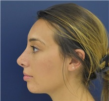 Rhinoplasty After Photo by Richard Reish, MD, FACS; New York, NY - Case 35287