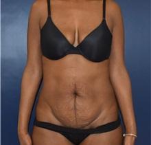 Tummy Tuck Before Photo by Richard Reish, MD, FACS; New York, NY - Case 35289