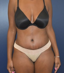 Liposuction Before and After Photos | American Society of Plastic