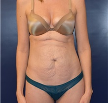 Tummy Tuck Before Photo by Richard Reish, MD, FACS; New York, NY - Case 35292