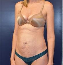 Tummy Tuck Before Photo by Richard Reish, MD, FACS; New York, NY - Case 35292