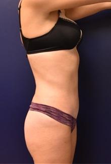 Tummy Tuck After Photo by Richard Reish, MD, FACS; New York, NY - Case 35292