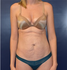 Liposuction Before Photo by Richard Reish, MD, FACS; New York, NY - Case 35293
