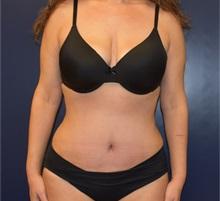 Tummy Tuck After Photo by Richard Reish, MD, FACS; New York, NY - Case 35295
