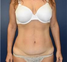 Tummy Tuck Before Photo by Richard Reish, MD, FACS; New York, NY - Case 35295