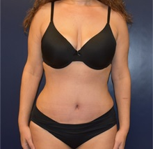 Liposuction After Photo by Richard Reish, MD, FACS; New York, NY - Case 35296