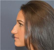 Rhinoplasty Before Photo by Richard Reish, MD, FACS; New York, NY - Case 35297