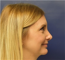 Ear Surgery After Photo by Richard Reish, MD, FACS; New York, NY - Case 35330