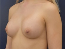 Breast Augmentation After Photo by Richard Reish, MD, FACS; New York, NY - Case 35332