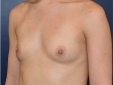 Breast Augmentation Before Photo by Richard Reish, MD, FACS; New York, NY - Case 35332