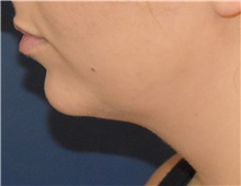 Chin Augmentation Before Photo by Richard Reish, MD, FACS; New York, NY - Case 35333