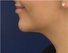 Liposuction After Photo by Richard Reish, MD, FACS; New York, NY - Case 35334