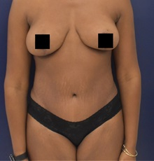 Liposuction After Photo by Richard Reish, MD, FACS; New York, NY - Case 35338