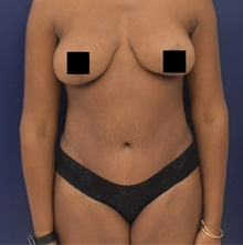 Tummy Tuck After Photo by Richard Reish, MD, FACS; New York, NY - Case 35339