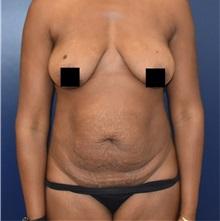 Tummy Tuck Before Photo by Richard Reish, MD, FACS; New York, NY - Case 35339