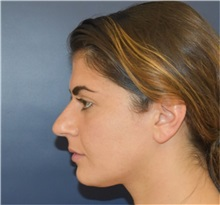 Rhinoplasty Before Photo by Richard Reish, MD, FACS; New York, NY - Case 35341