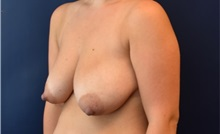 Breast Lift Before Photo by Richard Reish, MD, FACS; New York, NY - Case 35376