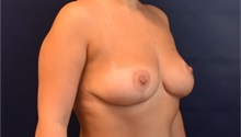 Breast Lift After Photo by Richard Reish, MD, FACS; New York, NY - Case 35376