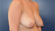 Breast Lift Before Photo by Richard Reish, MD, FACS; New York, NY - Case 35376