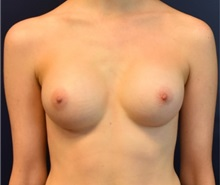 Breast Augmentation After Photo by Richard Reish, MD, FACS; New York, NY - Case 35377