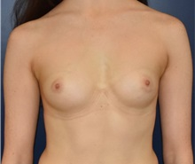Breast Augmentation Before Photo by Richard Reish, MD, FACS; New York, NY - Case 35377