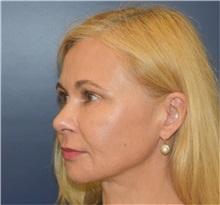 Facelift Before Photo by Richard Reish, MD, FACS; New York, NY - Case 35379
